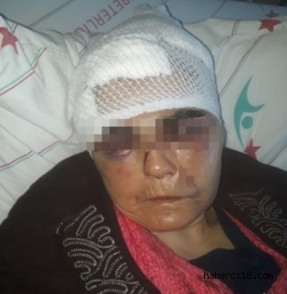 Ilgaz Kadına Şiddet Olayı İle Sarsıldı